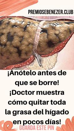 ¡Anótelo antes de que se borre! ¡Doctor muestra cómo quitar toda la grasa del hígado en pocos días! – SALUD PARA TI Health Remedies, Diabetes, Detox, Health Fitness, Beef, Vegetables, Tips, Food, Oral Hygiene