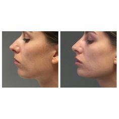 The profile... Nose lip chin -enhanced to bring it into better proportions .. The mm' s that make the difference ... . . . . . .  #nosefiller #nonsurgicalnose #nosurgeryface #expertinjector #juvederm #voluma #skinspecifics #facialinjections #chin #phiproportions #facebalance #face #mua #beforeandafter #chinenhancement #chinprojection #lipfiller #dermalfiller #cheeks #eyes #lips #mua #jawline #strongjaw #facialbalance #nosesurgery #anushadahan #skinspecifics #wontbuyfollowers #authenticity…