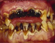 effects of krokodil pictures | While many of us know the potential harmful effects of illegal drugs ...