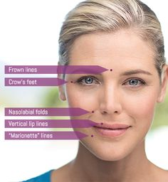 Boston's top cosmetic dentist offers BOTOX and Juvederm filler to reduce smile & frown lines, crows feet and to smooth wrinkles in Boston and Newton Cosmetic Fillers, Facial Fillers, Dermal Fillers, Lip Fillers, Skin Treatments, Facial Esthetics, Relleno Facial, Lips