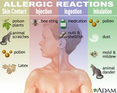 Anaphylaxis requires immediate medical treatment, including a prompt injection of epinephrine and a trip to a hospital emergency room. If anaphylactic shock isn't treated immediately, it can be fatal. Candida Albicans, Allergy Asthma, Allergy Symptoms, Allergy Relief, Allergy Free, Allergy Remedies, Blood Test, Allergies, Spirulina