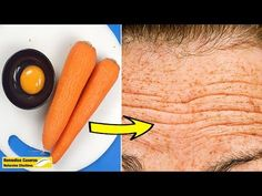 Wrinkles On The Forehead are one of the first signs of skin aging on your face. Today we will show you a natural Botox mask to Get Rid Of Wrinkles On The For. Face Skin Care, Diy Skin Care, Wrinkle Remedies, Neck Wrinkles, Healthy Skin Tips, Rides Front, Wrinkle Remover, Skin Treatments, Beauty Skin
