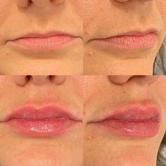 Bei dieser Patientin lag der Fokus vor allem auf der sehr dünnen Oberlippe - dennoch darf man dabei die Unterlippe nicht vergessen - die Unterlippe sollte immer ein bisschen grösser als die Oberlippe sein! Lip Fillers, Lip Shapes, Fuller Lips, Liposuction, Thin Lips, Face, Upper Lip, Wels, Collagen