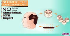 There are a lot of hair transplant procedures and every procedure is not suitable for every patient. Choosing a suitable procedure is the main work of an authentic doctor. If the procedure is decided properly, it reduces the cost of the treatment automatically.