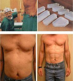 Saggy balls plastic surgery