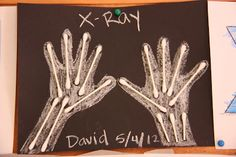 Make X-Ray of hands craft with Q-tips and chalk for preschool My Body Theme, My Insides