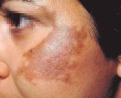 Melasma é um distúrbio que provoca o aparecimento de manchas de tom amarronzado na pele.Suas principais causas são desequilíbrios hormonais na gravidez e o uso de pílulas anticoncepcionais.