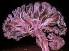 """Spectacular brain scans enhanced with gold leaf and """"reflective microetching"""""""