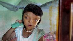 Babies with rare and strange genetic disorders ...