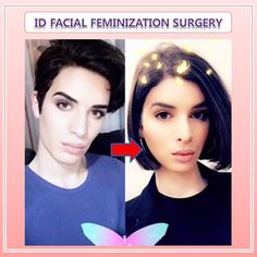 facial feminization surgery in Korea 【FFS】 before & after photos, (FFS) is for anyone who wants to have a soft, feminine structure not only face but also body. Korean Plastic Surgery, Plastic Surgery Photos, Transgender Model, Transgender Girls, Ffs Surgery, Facial Feminization Surgery, Male To Female Transition, Male To Female Transformation, Beauty Hacks
