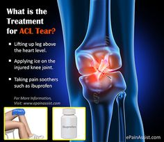 What is the Treatment for ACL Tear? Read: http://www.epainassist.com/sports-injuries/knee-injuries/treatment-for-acl-tear