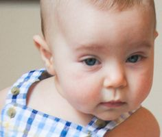 My 8 month old child has a red, bumpy rash on his cheeks. Is this #eczema? - #AskRx