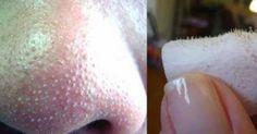 Cherchez-vous une manière bien simple de retirer les points noirs sur votre nez? Ne cherchez plus!  Avec trois ingrédients naturels et trois minutes deux fois par semaine, vous serez en mesure de vous débarrasser de ces points noirs.  Les trois ingrédients en question: du sel, du citron et de l'eau! Il vous faut exactement une cuillère à soupe de sel, une demi-cuillère à soupe de jus de citron et une cuillère à soupe d'eau.  Voici ce que vous devez faire:  Premièrement, placez le sel dan Blackheads On Back, Pimples On Forehead, Pimples On Chin, Beauty Box, Beauty Tips For Skin, Beauty Hacks, Hair Beauty, Small Pimples, Pimples Under The Skin