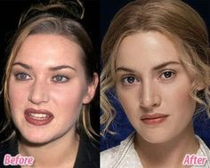 Kate Winslet pictured here looking young and fresh with thanks to excellent cosmetic surgery