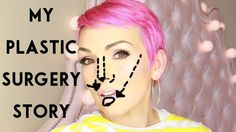 """My """"Plastic Surgery"""" Story- Kandee Johnson is an awesome ray of sunshine!"""