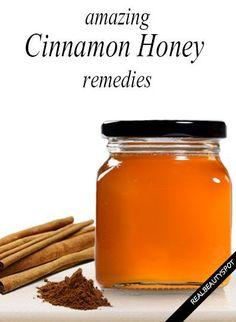 amazing remedies using cinnamon and honey. Just make sure you have organic sweet cinnamon and organic honey.