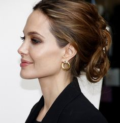 Chin Implant Before And Afters, Perfect Celebrity Jawlines - Hot Topic - NewBeauty