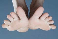 Blisters Treatment: Is Popping Blisters Safe?