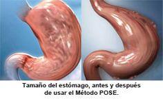 """Técnica Pose, se realizan plicaturas """"grapas"""" para reducir el tamaño del estómago y lo que evita grandes comidas y provoca sensación de constante saciedad. No es una cirugía el procedimiento es ambulatorio. Infórmate en COR & ESTÉTICA: 654836641"""