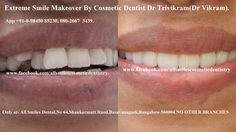 Smile makeovers in Bangalore by Cosmetic Dentist Dr Trivikram(Dr Vikram).Any adult having teeth with gaps, crooked teeth, over sized, small teeth, dark teeth, bad crowns, protruding  or  fractured teeth is a candidate for smile makeover. This treatment is not a surgery and your teeth can be straightened without braces/orthodontic treatment and can be finished in just 5-7 days. Read more at http://www.allsmilesdc.org/cosmetic-dentistry-faqs/  PH +91-0- 98450 85230.080-26673439.