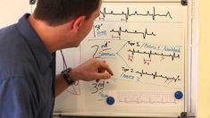 Really Good Video on Heart Blocks- 1st degree, 2nd Degree- Mobitz I, Mobitz II, 3rd Degree