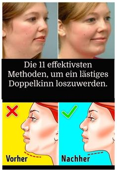 The 11 most effective ways to get rid of an annoying double chin. Health Challenge, Workout Challenge, Healthy Tips, Healthy Skin, Double Menton, Gewichtsverlust Motivation, Daily Health Tips, Double Chin, Beauty Kit