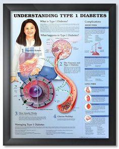 Understanding Type 1 Diabetes (3E) 20x26 Anatomy Poster #diabetestype1