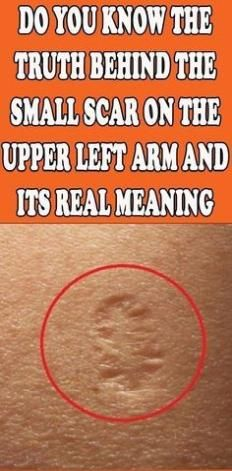 This Is The Truth Behind The Scar Everyone Has On The Upper Left Arm - Super Natural Medicine Natural Health Tips, Natural Healing, Natural Skin, Natural Beauty, Natural Sleep, Natural Life, Natural Medicine, Herbal Medicine, Health And Nutrition