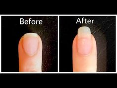 HOW TO GROW NAILS FAST IN 1 HOUR FOR A WEEK ! NATURALLY FASTER - YouTube