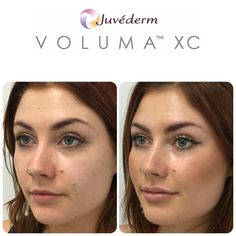 Highly experienced Cosmetic injecting team in Perth delivering natural looking results with dermal fillers. Cheek Fillers, Facial Fillers, Botox Fillers, Dermal Fillers, Cosmetic Fillers, Cheek Implants, Lip Augmentation, High Cheekbones, Spa