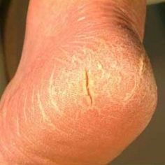 Best 7 Home Remedies For Cracking Feet