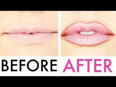 How To Fake (Full) Lip Injections #TUTORIAL=ignore the obviously dodgy lip liner colour in this pic, the vid is very helpful!-TLP