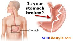 """Is your stomach broken? Consider increasing your stomach acid to help """"fix"""" it. This post gives you three ways to naturally improve your stomach acid production to make your stomach work like new again. What Causes Acid Reflux, Stop Acid Reflux, Health Articles, Health Tips, Gut Health, Health Care, Treatment For Heartburn, Low Stomach Acid, Specific Carbohydrate Diet"""