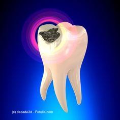 Hast Du noch #Amalgamfüllungen im Mund? Hier erfährst Du, wie sicher #Amalgam wirklich ist!