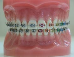 Colorful #Braces- When someone needs #braces, he or she can choose between standard-looking ones or braces with some added color. Talk to your dentist to see what color options are available for your braces.