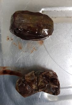 Damaged/ leaking packages of drugs found in the stomach at autopsy via @tracymarks84 on Twitter