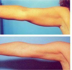 Los siguientes ejercicios está pensados para trabajar la zona de los brazos donde más se acumula la grasa, para tenerlos más tonificados y delgados