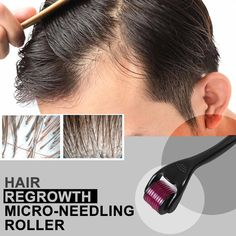 Derma Roller Before And After, Micro Needle Roller, Hair Regrowth, Hair Follicles, Anti Hair Loss, New Hair Growth, Magic Hair, Beard Growth, Hair Loss Remedies