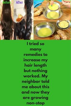 3 most effective remedies to increase hair growth super fast. If you are one of them, who try many things to increase hair length but despite of so many efforts hair length is fixed at one point, this (Hair Growth Super Fast) New Hair Growth, Hair Growth Tips, Natural Hair Growth, Hair Growth Recipes, Hair Growth Mask, Hair Growth Shampoo, How To Grow Natural Hair, Growth Oil, Hair Masks