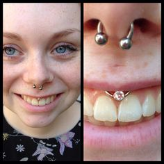 """""""Smiley"""" piercing done by me with Swarovski crystal captive bead"""