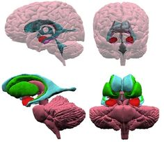 3-D View of the Human Brain