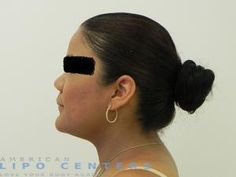 After Liposuction Chin | American Lipo Centers