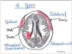 We discuss the causes and presentations of epidural and subdural hematomas in the Emergency Department. For educational purposes only. Medical Mnemonics, Pharmacology Nursing, Nursing Tips, Nursing Notes, Icu Nursing, Nih Stroke Scale, Ottawa, Epidural Hematoma, Neurological Assessment