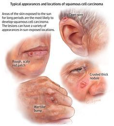 Do you know how to recognize squamous cell carcinoma?