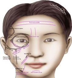 Figure 4.45 from The Art and Science of Filler Injection: Based on Clinical Anatomy and the Pinch Technique | Semantic Scholar Cosmetic Fillers, Facial Fillers, Botox Fillers, Plastic And Reconstructive Surgery, Plastic Surgery, Facial Aesthetics, Medical Aesthetics, Filler Injection, Surgery Journal