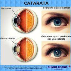Cuida Tu Visión on | Remedios casero | Pinterest | Salud ...