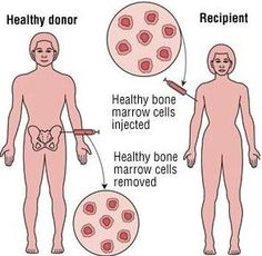 Bone Marrow Transplant for Thalassemia, Bone Marrow Transplant in india, Bone Marrow Transplant Centre, Bone Marrow Transplant Hospital