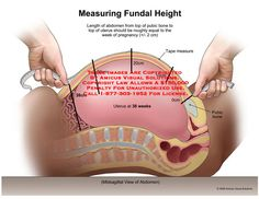 Measuring Fundal Height