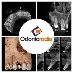 Tomografias Odontoradio.  #odontoradiocd #odontologia #tomografia  #imagem  #implantodontia #imaging  #lajeado #teutônia #santacruzdosul #tomography