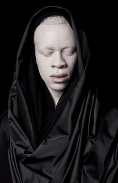 Albus II - Sanele Xaba. In pictures: Albinism and perceptions of beauty http://www.bbc.co.uk/news/in-pictures-35719145